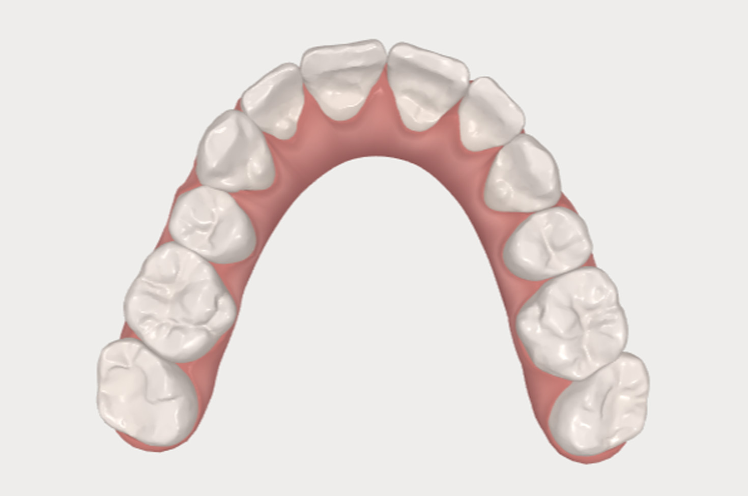 after-invisalign-treatment-image