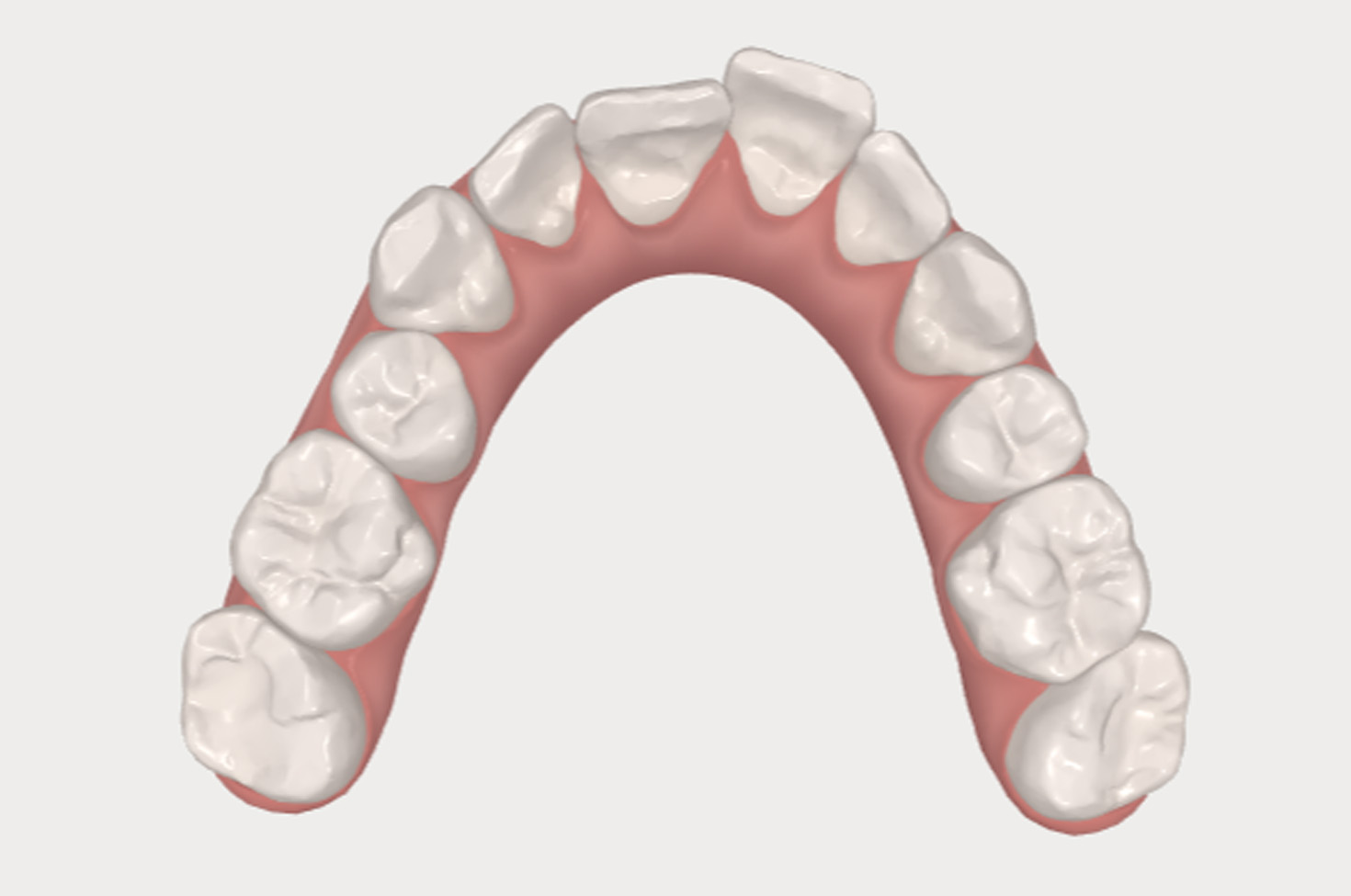 Simulation images of before and after teeth straightening