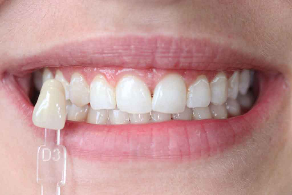 after-photograph-enlighten-teeth-whitening