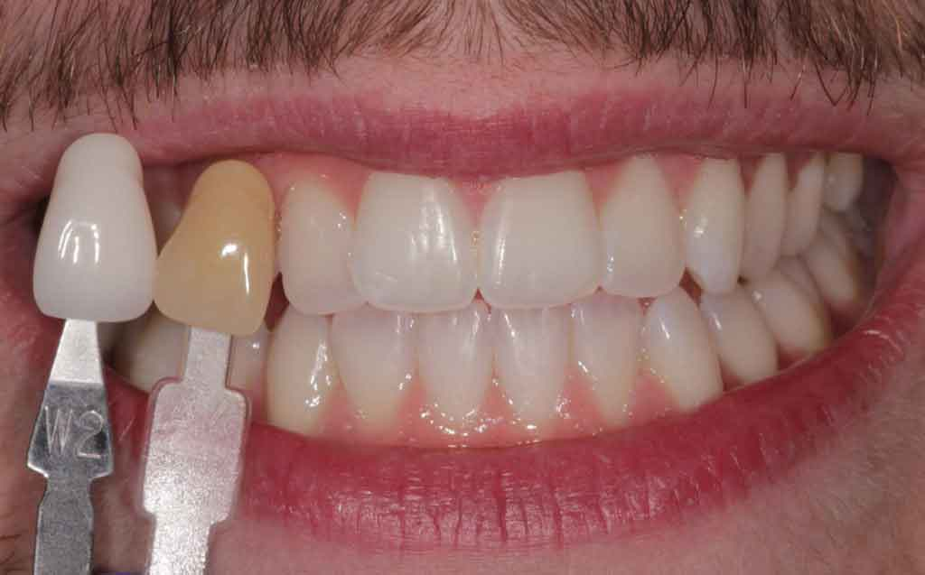 after-image-of-enlighten-teeth-whitening-treatment-at-fhdc