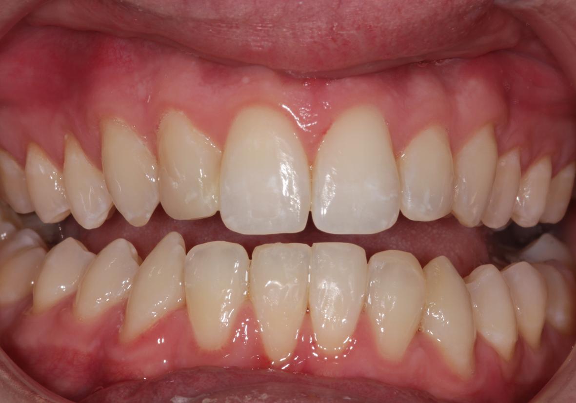 Six Month Smiles Teeth Straightening Testimonial