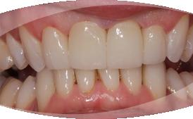 teeth-whitening-veneers-picture