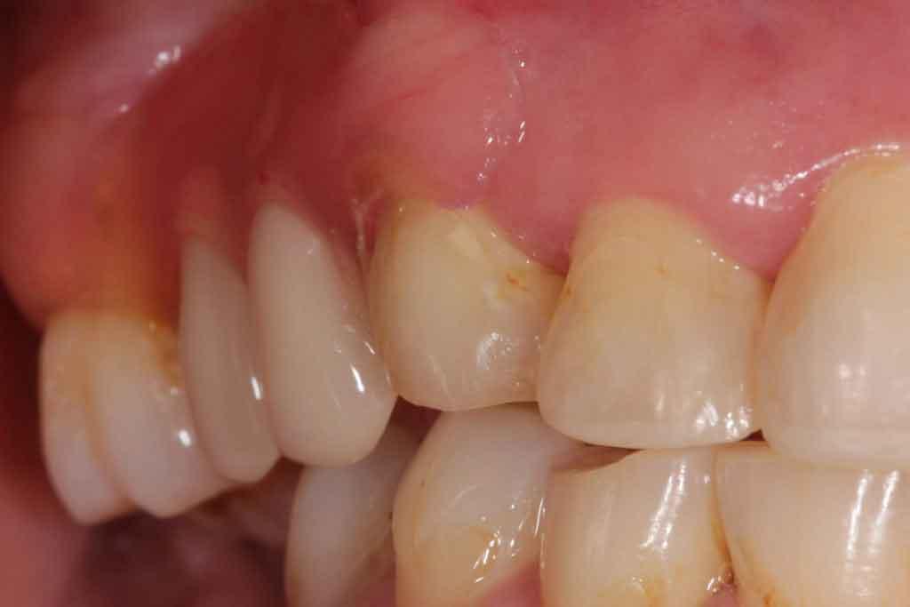 After-Valplast-Dentures