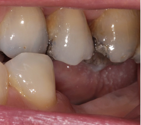 before-dental-implant-treatment