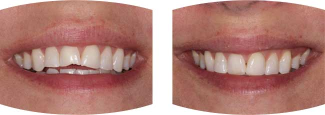 Before and after dental treatment photos of dental composite tooth repair.