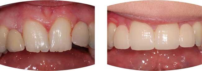 Dental Veneers Cosmetic Dentist Procedures In Leeds