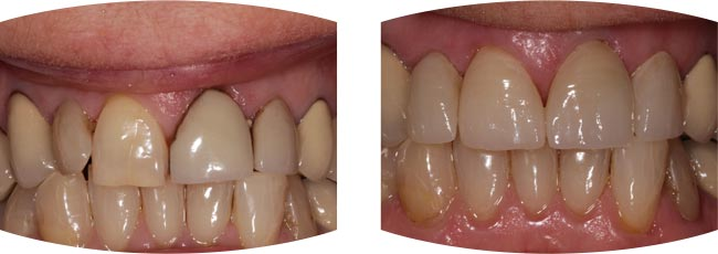 Before and after dental treatment images for Emax Porcelain Veneers