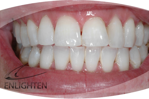 Photo before Enlighten Teeth Whitening Treatment