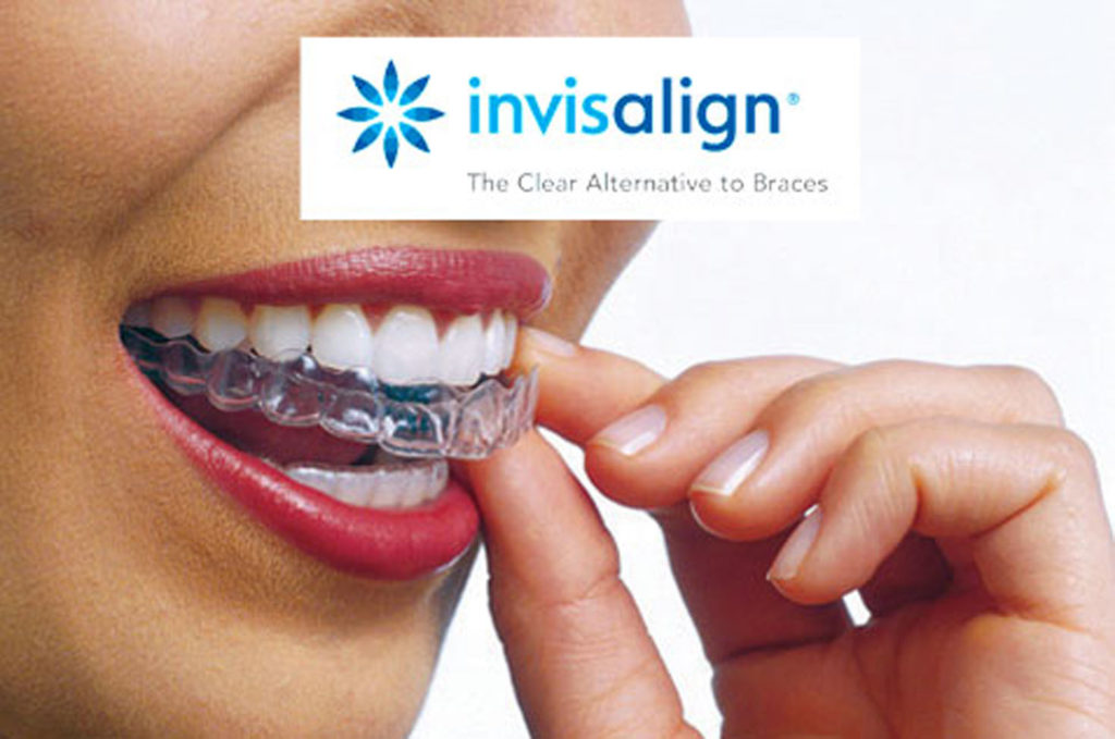 invisalign-clear-braces-in-leeds