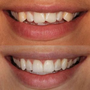 before-and-after-cosmetic-dentistry-case-study