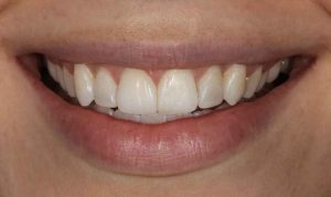 after-invisalign-and-composite-bonding-dentistry