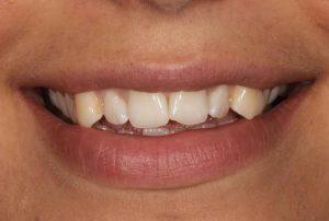 teeth-straightening-and-composite-bonding-before
