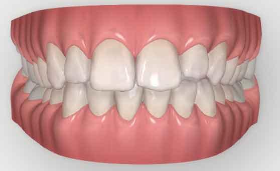 Invisalign-dentist-Leeds-digital-simulation