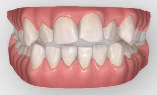 invisalign-teeth-straightening-digital-scan-before