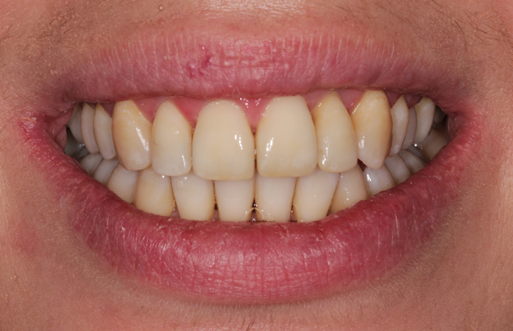 teeth-straightening-in-leeds