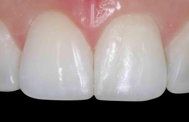 Composite-bonding-invisalign-dentist-Leeds