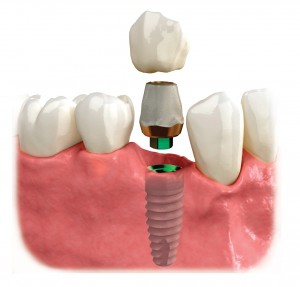 dental-implant-biohrizons-case-study