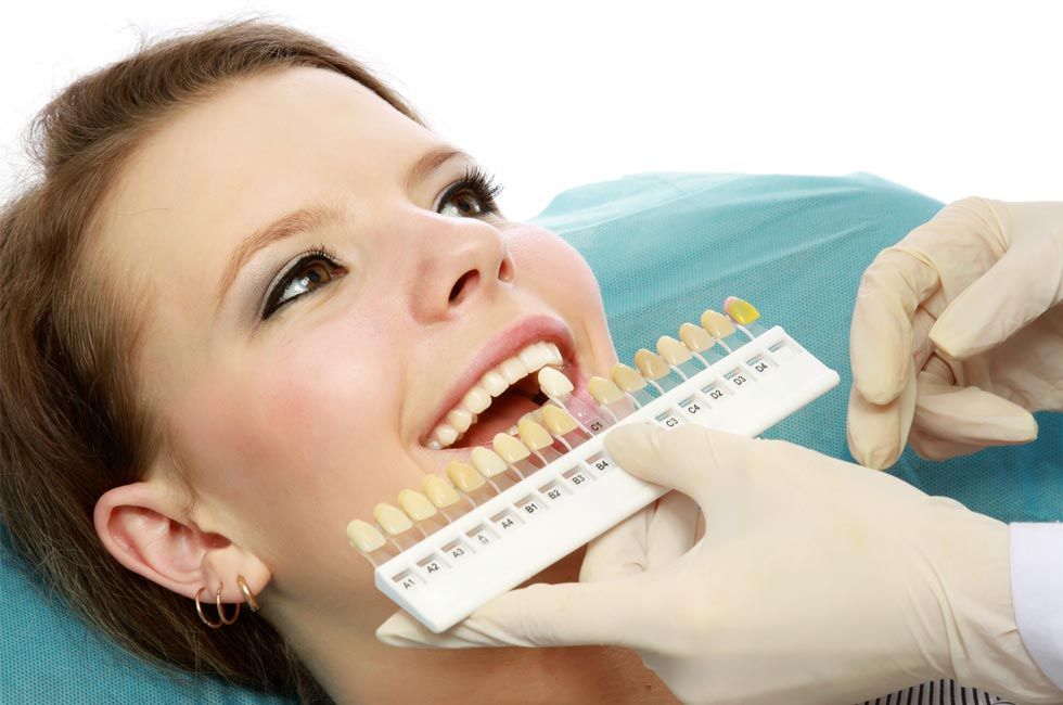 boutique-teeth-whitening-shade-match