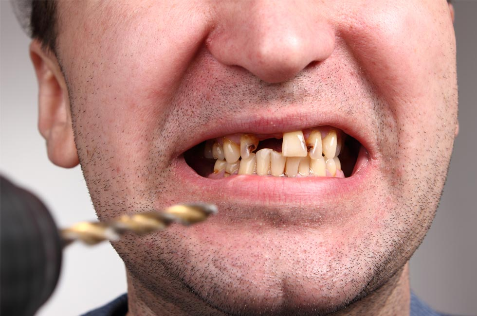 Bad Teeth Can Affect Your Mental Health