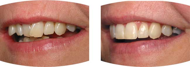Six Month Smiles case study