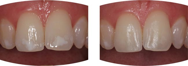 White Spot Treatment example