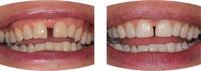 Diastema Closure case study