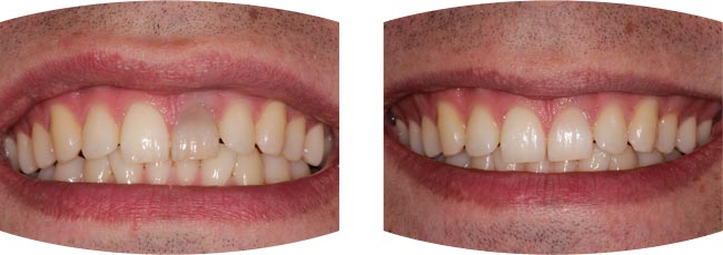 Internal Tooth Whitening