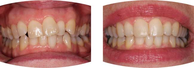 Before and after photographs of teeth straightening