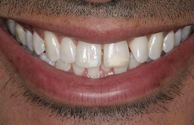 cosmetic-dentistry-using-teeth-whitening-before-composite-bonding