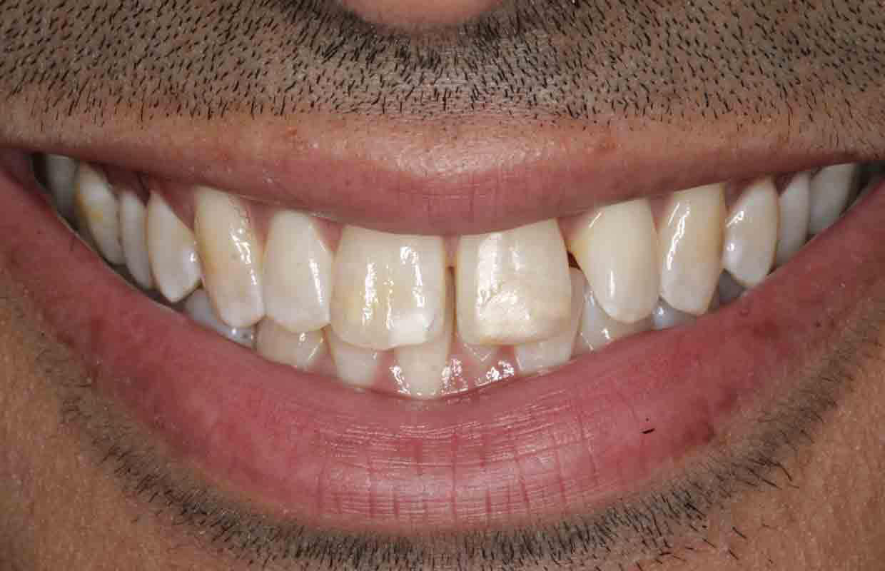 teeth-whitening-and-composite-bonding-before