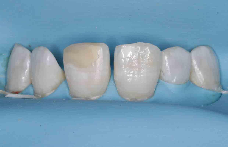 teeth-before-composite-bonding-treatment