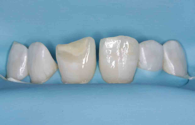 teeth-before-composite-bonding-treatment-rubber-dam
