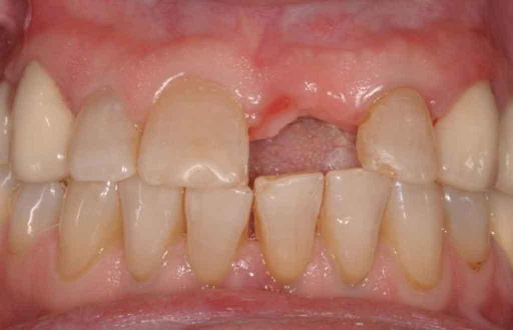 before-dental-implant-case-study-3