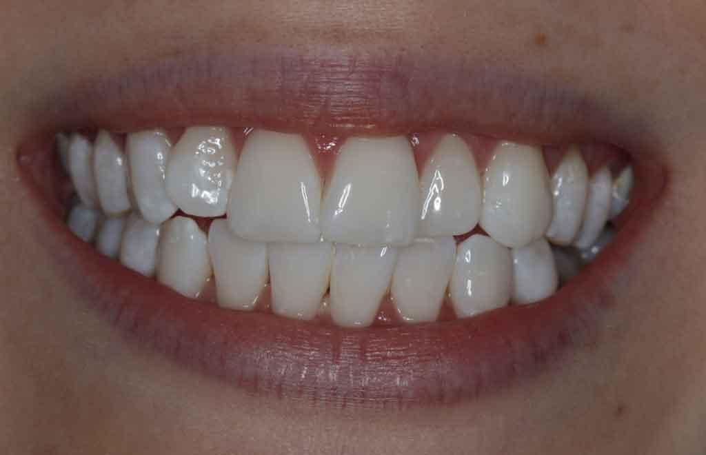 after-enlighten-teeth-whitening-in-leeds