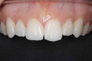 teeth-before-composite-bonding