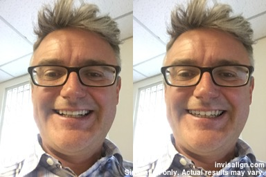 Before-after-Invisalign App