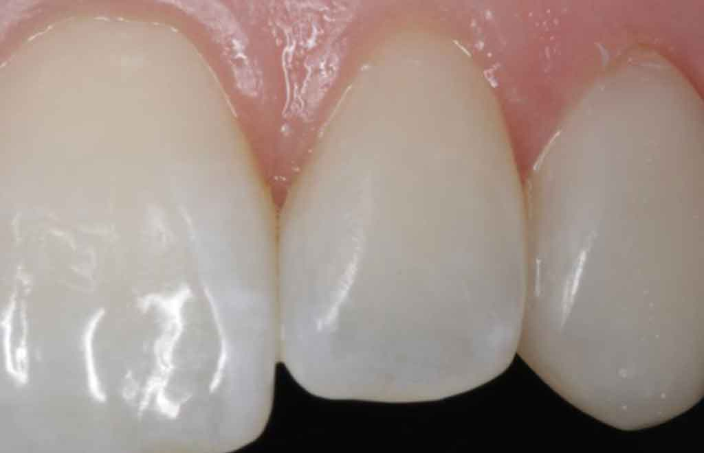 invisalign-dentist-in-leeds-case-study-chris-beech