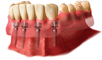 Denture Stabilisation With Implants