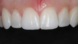 cosmetic-bonding-and-Invisalign-teeth-straightening