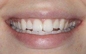 teeth-before-cosmetic-composite-bonding-dentistry-in-Leeds