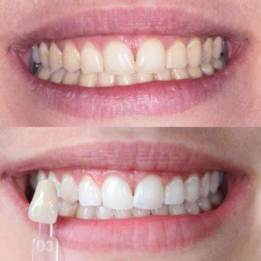 Professional Cosmetic Dentist Teeth Whitening In Leeds Book