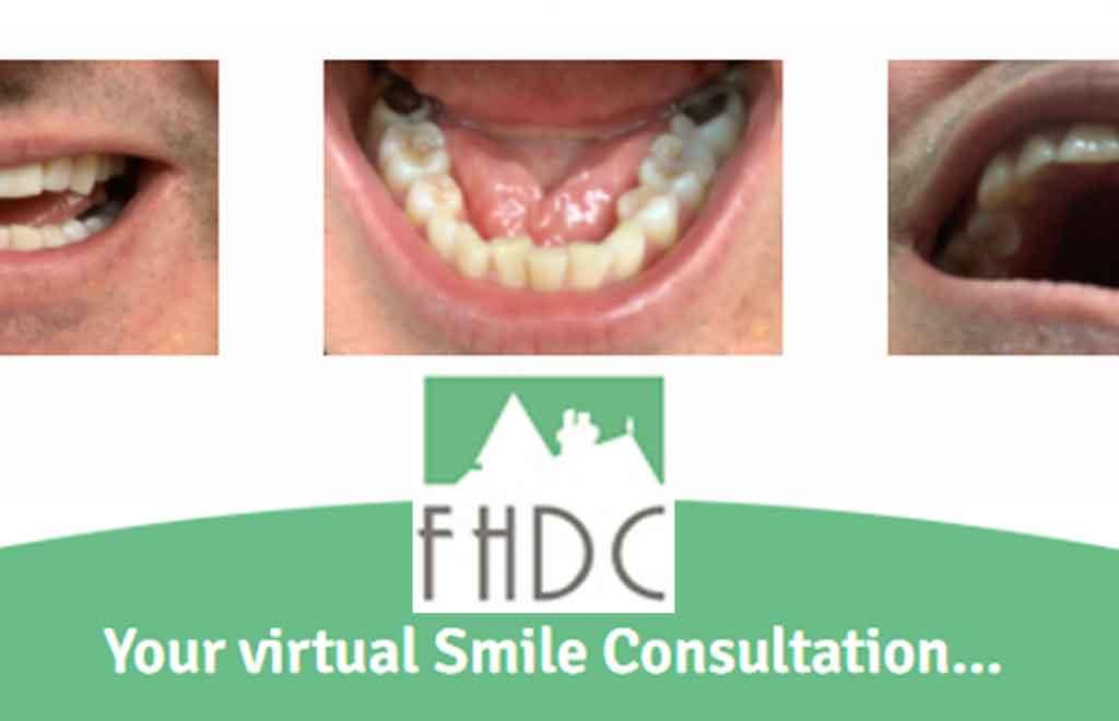 virtual-dental-consultation
